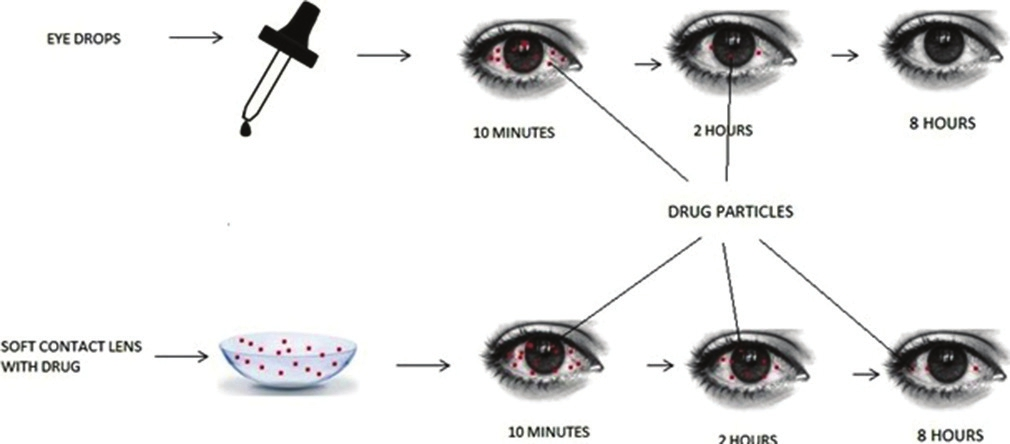 Contact Lenses out of Chitosan ContactLenses t