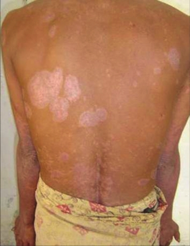 A Case of Psoriasis Vulgaris Complicated with an HIV Infection 1