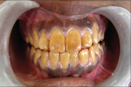 amelogenesis imperfecta mahesh k p int j health allied sci