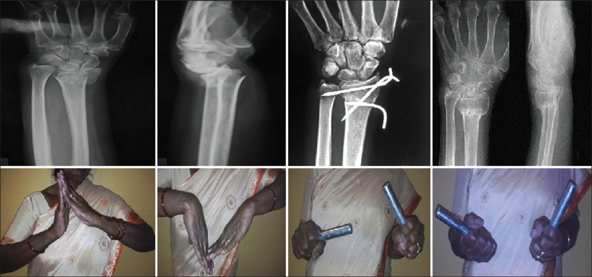 Percutaneous K-wire fixation of distal radius fractures: Our results ...