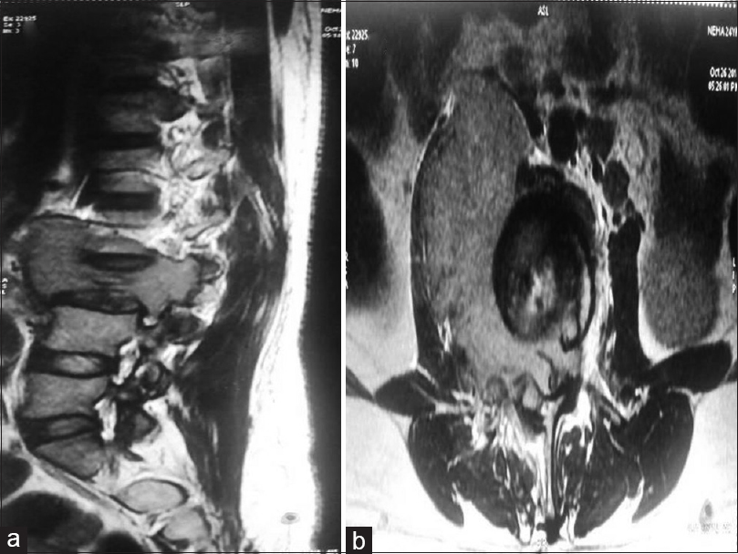 Figure 1: (a and b) Sagittal and axial T2-weigted images showing severe compression and collapse of L3 vertebral body with diffusely altered iso-hyperintense marrow signals and soft tissue component in the right pre- and para-vertebral space