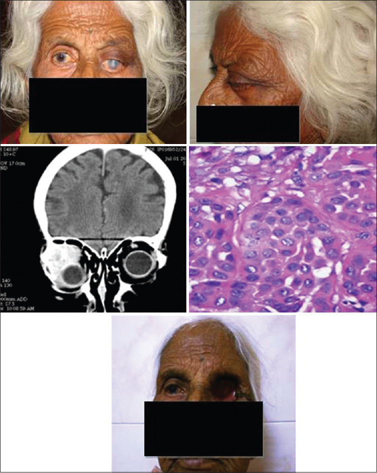 Figure 3: Patient with mucoepidermoid carcinoma of lacrimal gland who underwent exenteration