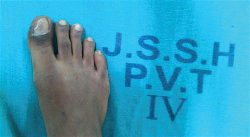 A rare case of subungual exostosis of the hallux in an
