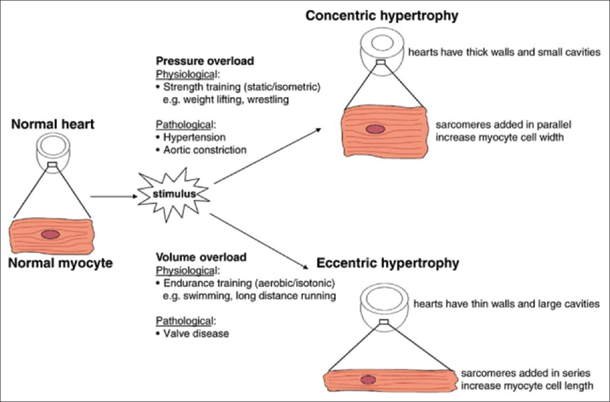Figure 5: Different stimuli induce different forms of cardiac hypertrophy. Pressure overload causes thickening of the left ventricle wall due to the addition of sarcomeres in parallel and results in concentric hypertrophy. Volume overload induces an increase in muscle mass via the addition of sarcomeres in series and results in eccentric hypertrophy. Reproduced with permission