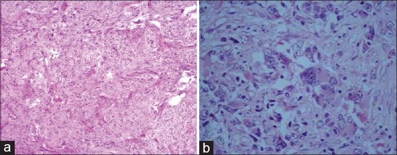 Figure 4: Histopathology showing (a) Rhabdoid meningioma (H and E, ×200). (b) Anaplastic meningioma (H and E, ×200)