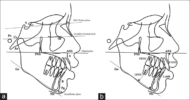 Figure 1: (a) Cephalometric landmarks and reference planes. (b) Dental height measurements
