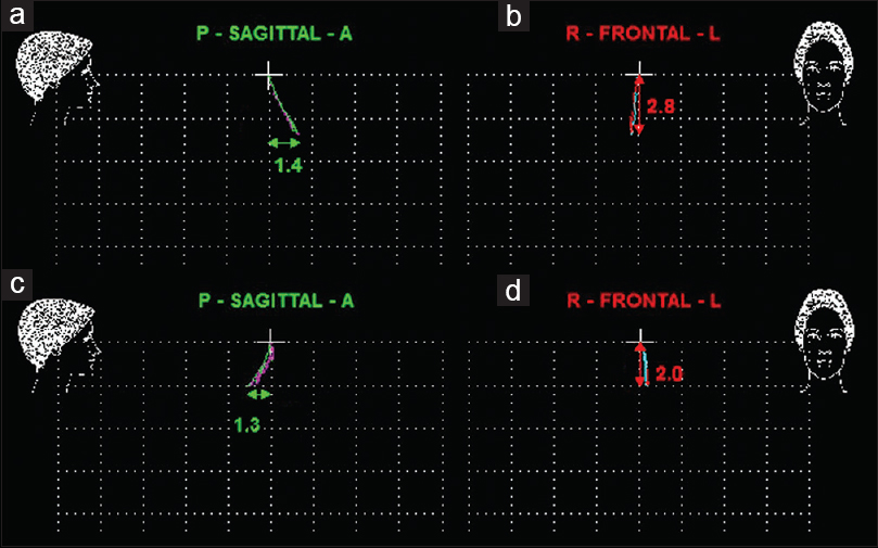 Figure 2: Examples of mandibular movements from rest position to maximum  intercuspation in the backward group (a: sagittal, b: frontal) and the forward group (c: sagittal, d: frontal) (grid size = 2 mm)