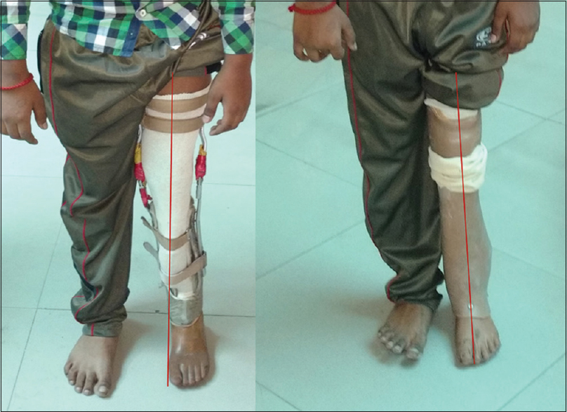 Figure 4: Improvement in alignment and more normal base of support with the current prosthesis (right) than the old prosthesis (left)